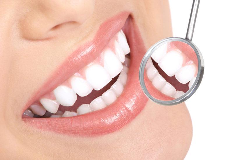 impianto dentale vantaggi