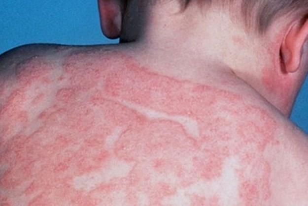 infezioni che si possono contrarre in spiaggia e piscina