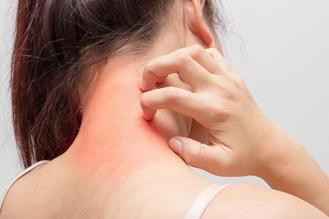 Sintomi della dermatite
